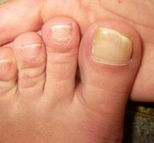 Как размягчить ногти на ногах в домашних условиях?