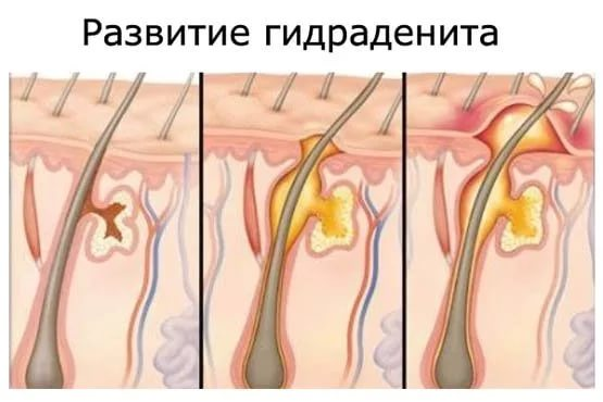 Гидраденит