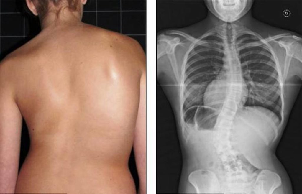 Чего ждать при диагнозе артроз 2 степени и как бороться с недугом