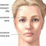 Клиническая картина остеонекроза челюсти и причины возникновения патологии