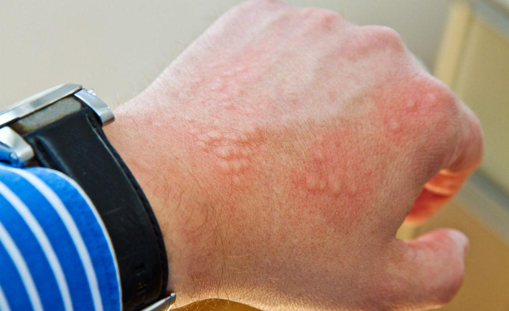 Эффективный противовоспалительный и обезболивающий препарат Ферматрон