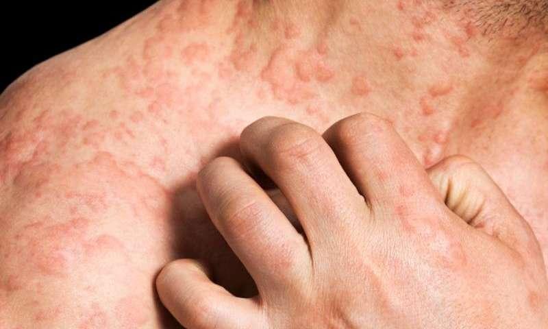 Крапивница - это дерматологическое заболевание