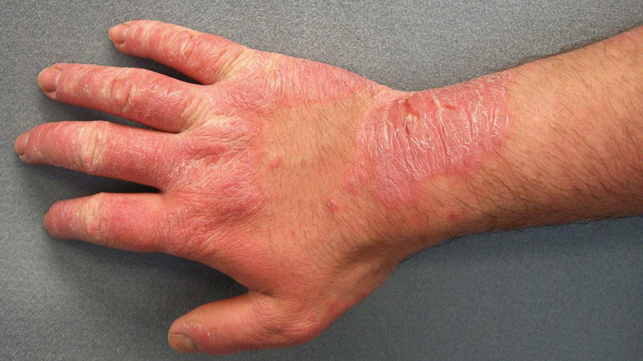 Шершавость - признак изменения кожи
