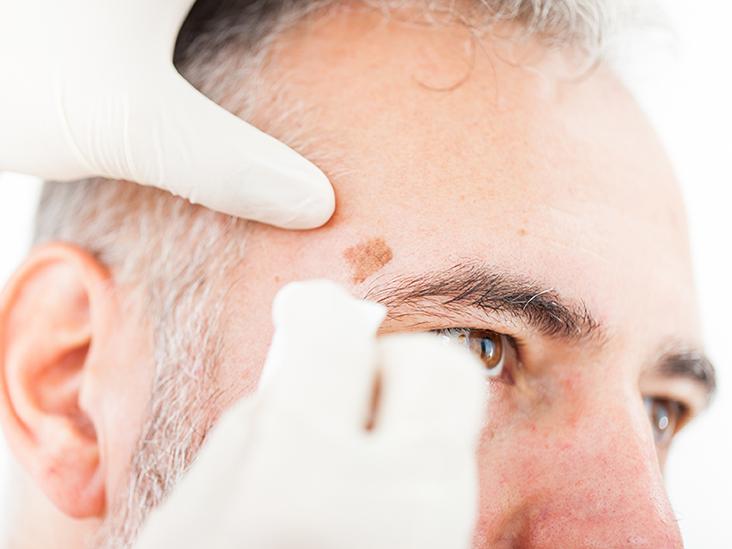 Пигментные пятна на лице удаляют лазером