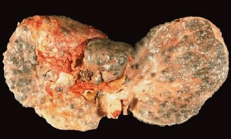 Гепатит С: первые признаки и схема лечения