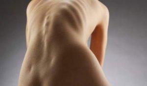 Симптомы и способы лечения правостороннего сколиоза