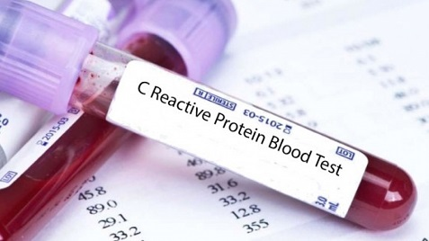 В крови повышен С-реактивный белок