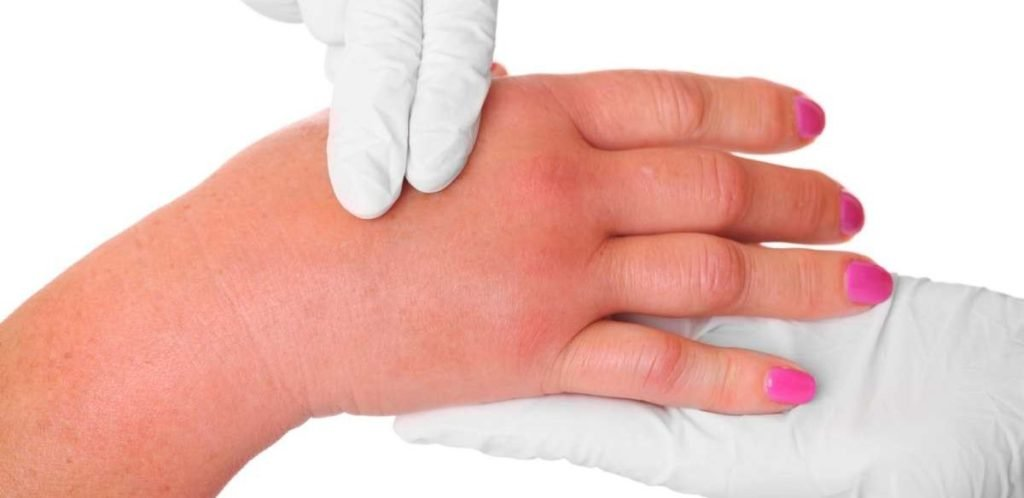 Эффективное лечение ушиба кисти руки при ударе в домашних условиях