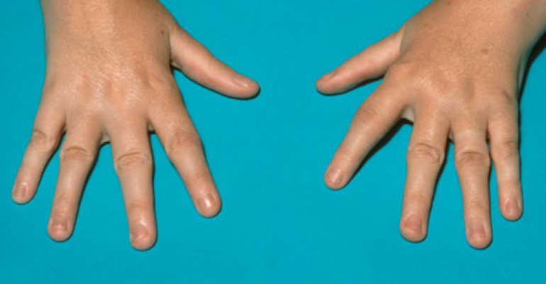 Какие симптомы у ювенильного хронического артрита и как его лечить