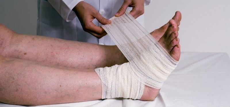Лечение и профилактика заболевания ахиллобурсит