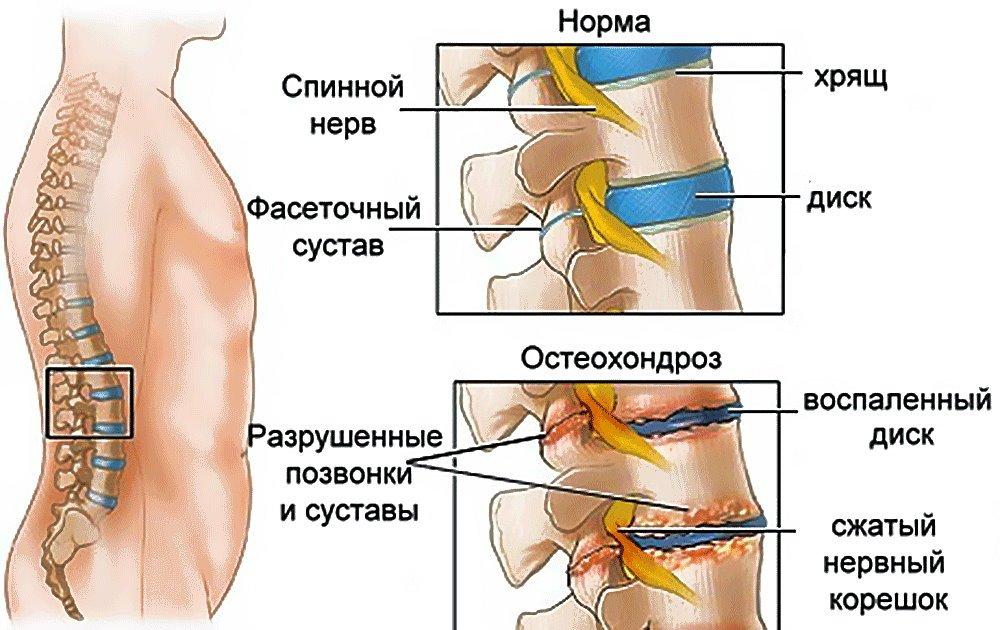 Дисплазия тазобедренных суставов у овчарок лечение