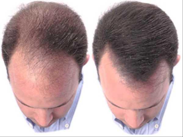 Методы пересадки волос рассмотрим всеплюсы и минусы каждого способа и узнаем примерную цену