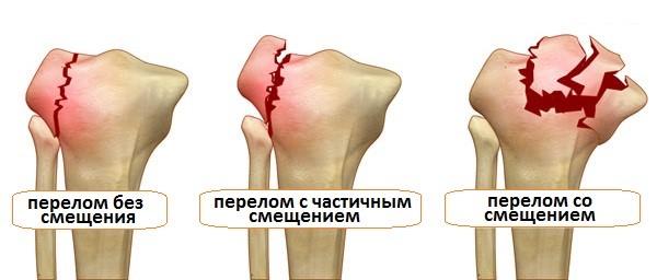 Первая помощь и возможные осложнения осколочного перелома, лечение