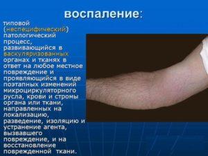 Антибиотик Цефамезин — лечение инфекций и воспалений
