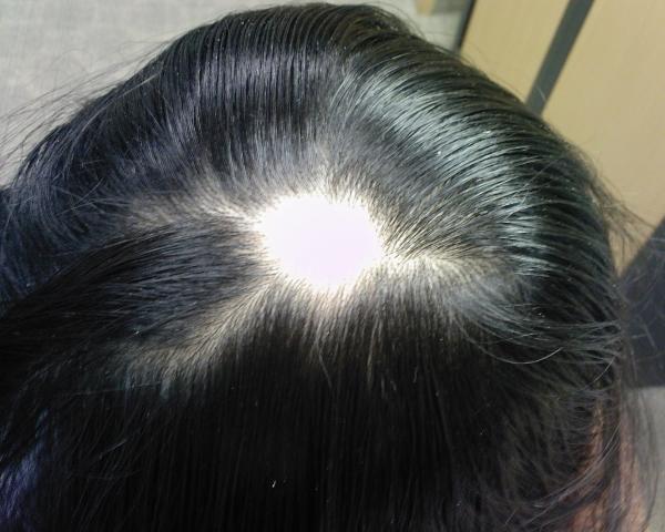 Всевозможные методы лечения очаговой алопеции у женщин