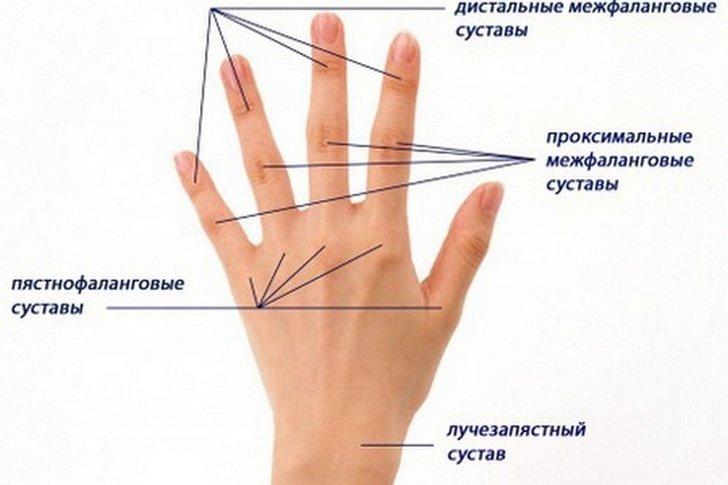 Почему болит сустав большого пальца руки