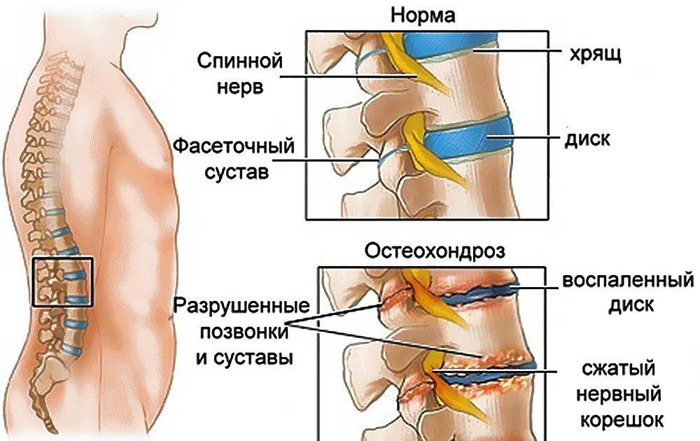 Применение хондропротекторов при лечении остеохондроза позвоночника