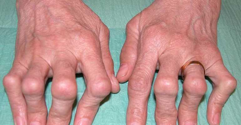 Что такое синдром Фелти и какую опасность несет для здоровья