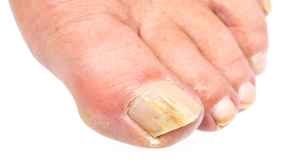 Причины желтых ногтей на ногах,Post navigation,Свежие записи
