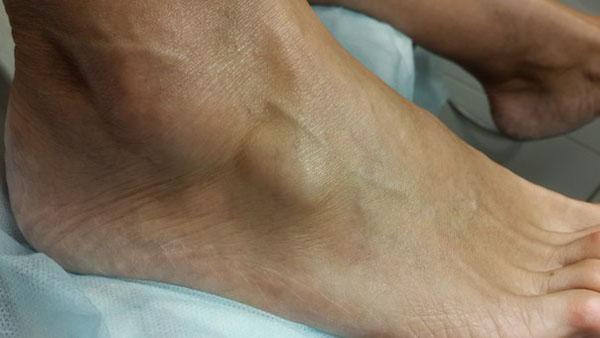 При появлении шишки на месте перелома стоит обратиться к врачу