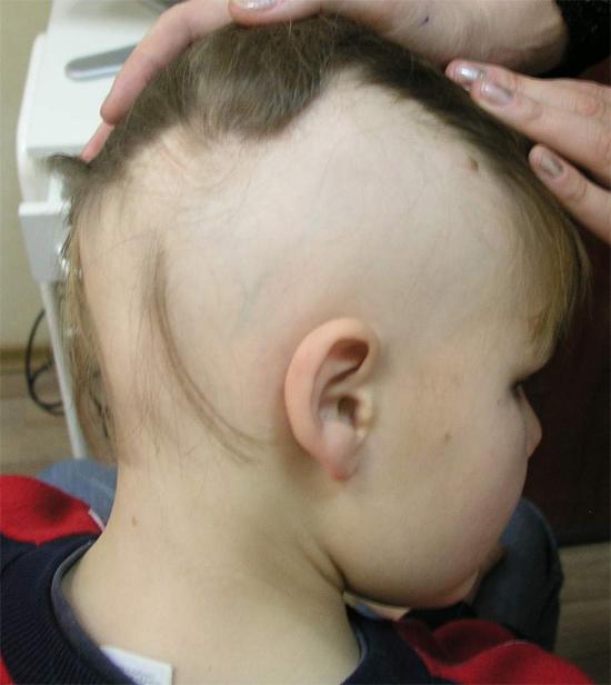 Выпадение волос у грудничка естественный процесс или патология