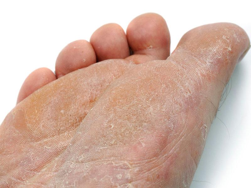 Кожа облазит на ногах по разным причинам