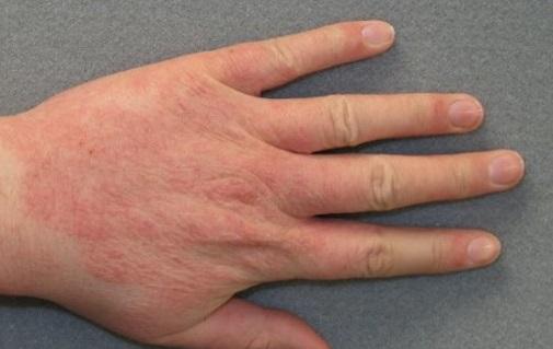 Чем лечить экзему на руках: лечение мазями, препаратами, народными средствам
