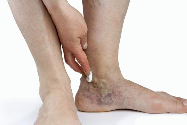 Почему болит голеностоп при сгибании или после бега?,Post navigation,Свежие записи