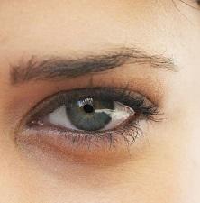 Темные круги под глазами: причины и лечение