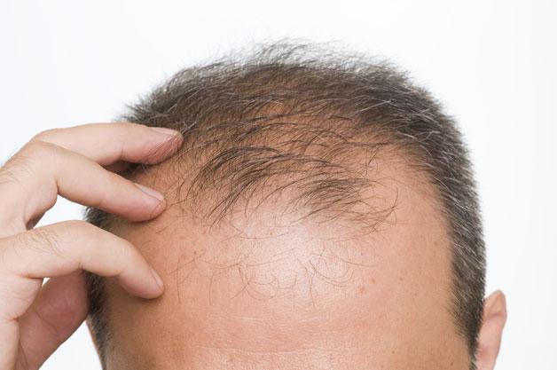 Мужской шампунь от выпадения волос