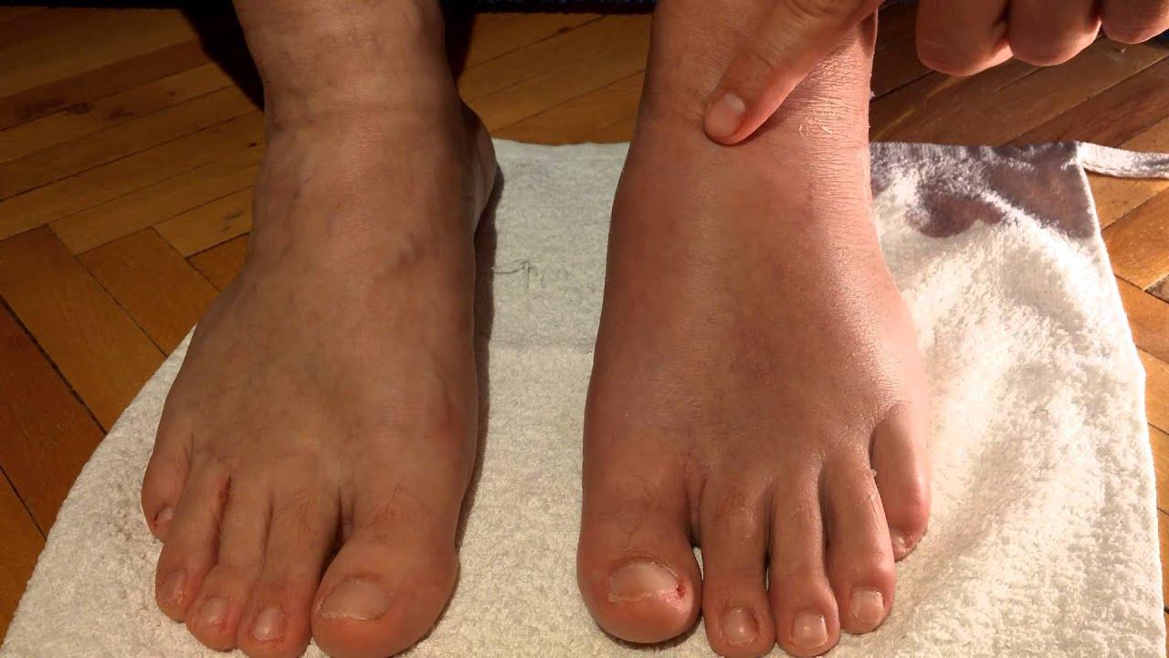 При разрыве связки голеностопа нужно обратиться к врачу
