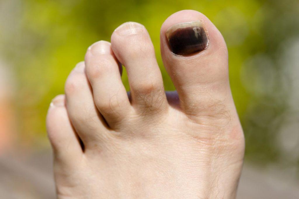 Чаще всего почернение ногтей связано с грибковыми инфекциями