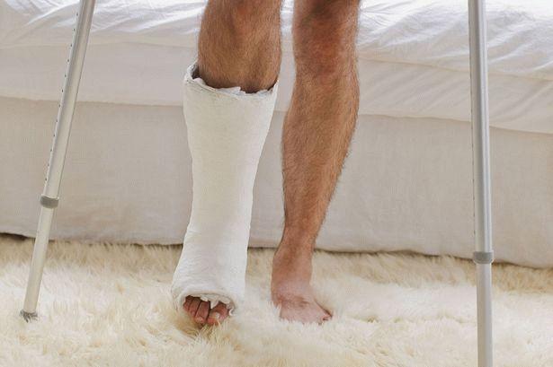 Виды и способы реабилитации после переломов конечностей