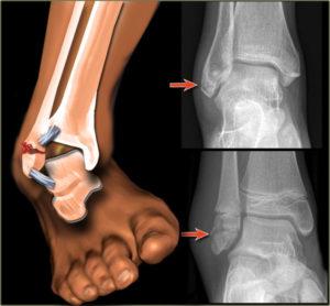 Лечение двухлодыжечного перелома и реабилитация