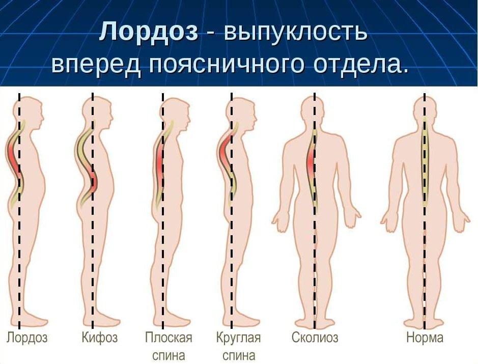 Диагностика и лечение лордоза поясничного отдела позвоночника