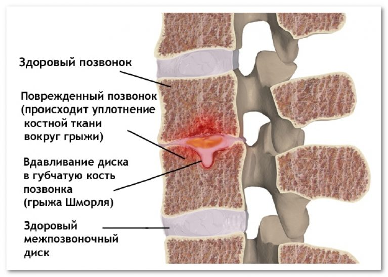 Лечение Грыжи Шморля, осложнения и последствия