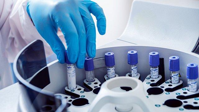 Причины возникновения патологии мраморная болезнь и ее лечение
