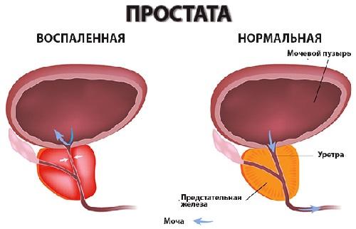 Простатиты у мужчин: первые признаки и лечение