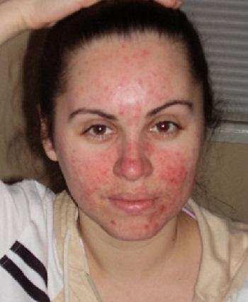 Демодекоз у человека: фото, симптомы и лечение