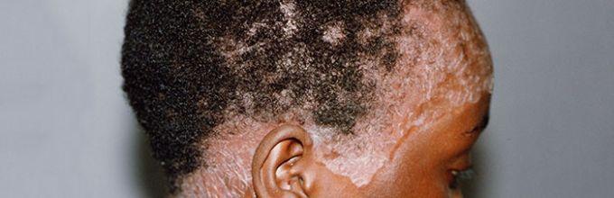 Причины возникновения на голове псориаза