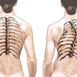 Особенности лечения грудопоясничного сколиоза