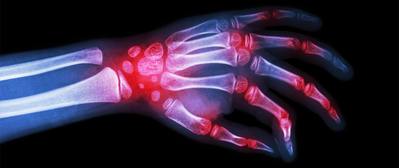 Характеристика серопозитивного ревматоидного артрита