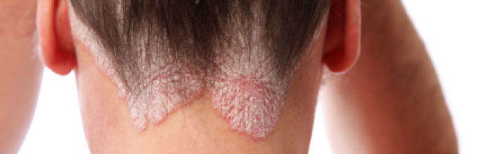 Какие существуют лекарства для лечения псориаза волосистой части головы