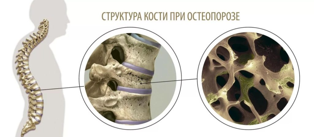 К каким врачам обратиться для лечения остеопороза