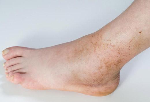 Пятна на коже коричневого цвета все причины появления и их лечение,Post navigation,Свежие записи
