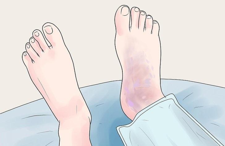 Что делать если появилась гематома на ноге после удара,Post navigation,Свежие записи