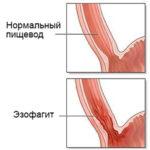 Польза препарата Бонвива для костной ткани