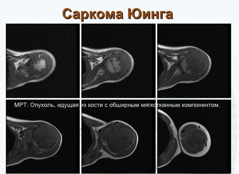 Что такое саркома позвоночника и чем она опасна для человека