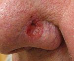 Рак кожи