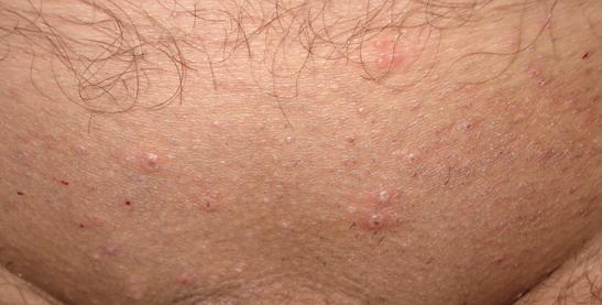 Гнойная сыпь на лобке может возникнуть по разным причинам